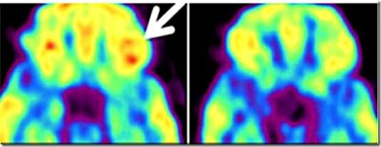 Effetti delle radiazioni sul cervello